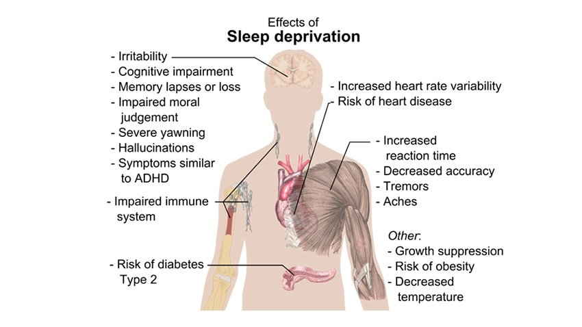 Sleep Depravation